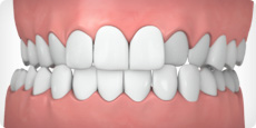 Invisalign can help correct a crossbite