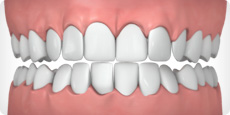 Invisalign can help correct excessive crowding