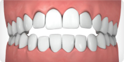 Invisalign can help correct an Open Bite