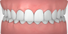 Invisalign can help correct an overbite