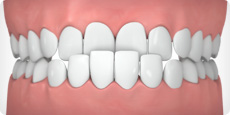 Invisalign can help correct an underbite